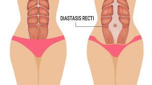Do you know any reconstructive surgeons for diastasis recti?